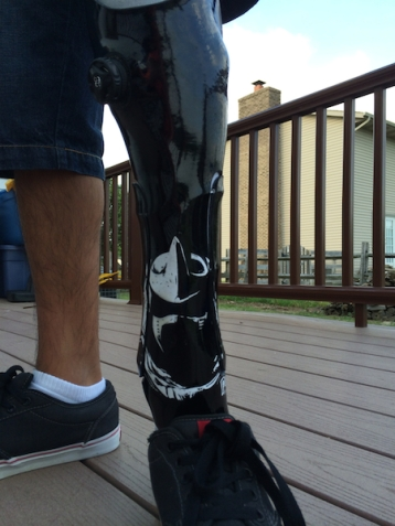 New prosthetic leg, designed by Nathan and his prosthetist - Shredder from TMNT